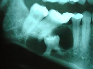 Cisto Dentígero